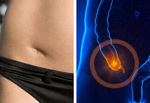 Simptome provocate de apendicită