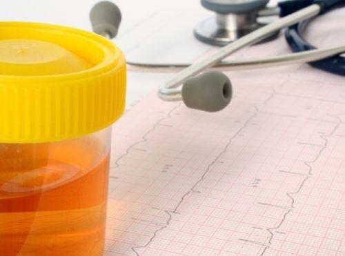 Insuficiența renală provoacă schimbări ale culorii urinei