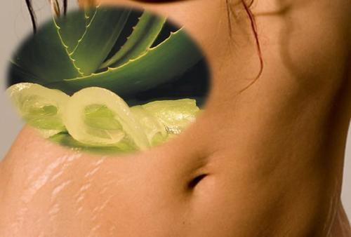 6 remedii naturiste pentru a ameliora vergeturile