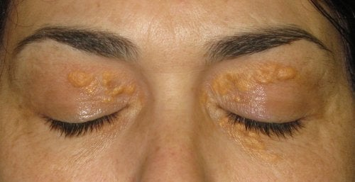 Xantelasmele: petele gălbui din jurul ochilor