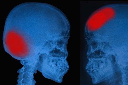 Accidentele vasculare cerebrale reprezintă o problemă foarte gravă