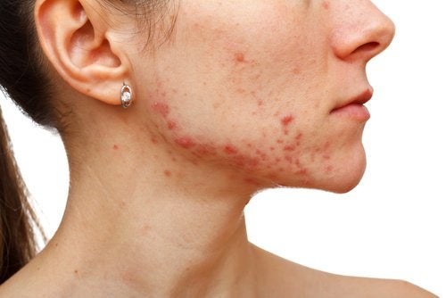 Acneea poate indica un dezechilibru hormonal