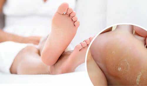 Remedii pentru bătăturile de la picioare 100% naturale
