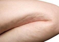Celulita apare pe picioare, fese sau abdomen