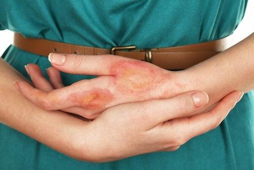Cancerul de piele poate fi provocat de o infecție