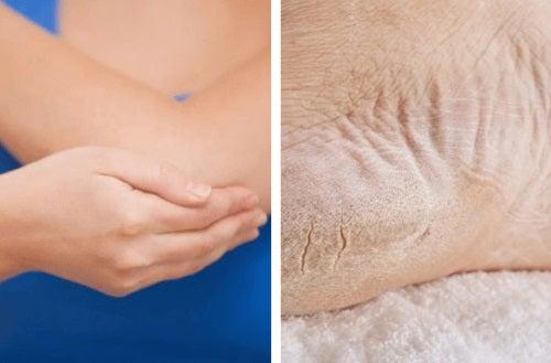 Remedii pentru pielea uscată de pe coate și călcâie