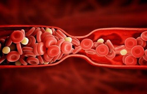 """Un nou tratament uimitor pentru colesterolul """"rău"""""""