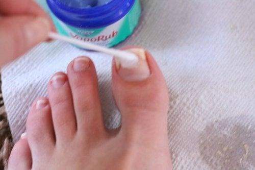 Unguentul VapoRub tratează ciuperca unghiei
