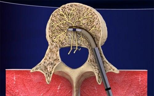 INTRACEPT este o noul tratament pentru lombalgia cronică
