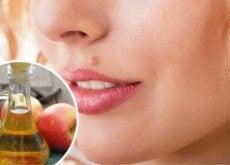 Alunițele pot fi îndepărtate cu remedii naturale