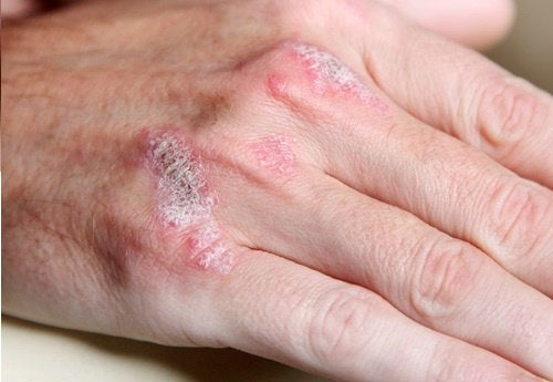 Bolile autoimune sunt cronice și nu au leac