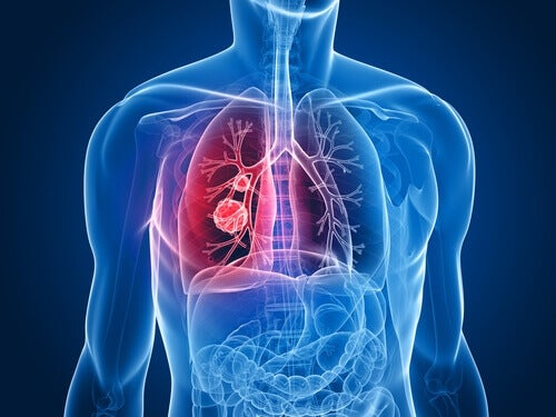 Cancerul pulmonar la femei