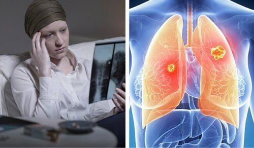 Cancerul pulmonar – riscuri pentru femei