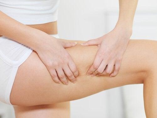 Femeie cu celulită pe picioare