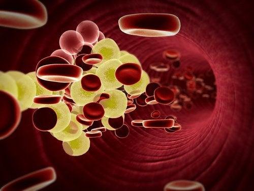 Colesterolul redus cu o băutură medicinală cu lămâie