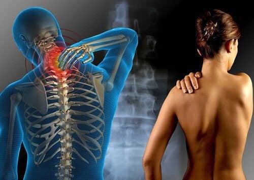 FIbromialgia poate fi una dintre cauzele durerilor articulare