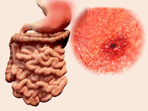 Și ulcerul peptic poate cauza o senzație de fluturi în stomac