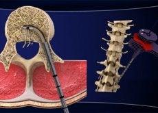 Lombalgia cronică afectează multe persoane