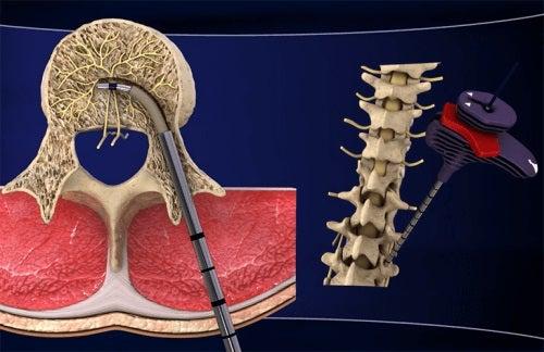 Descoperă noul tratament pentru lombalgia cronică