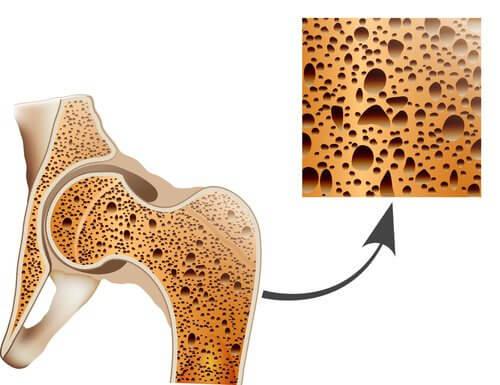 Diverse obiceiuri sănătoase te ajută să previi osteoporoza