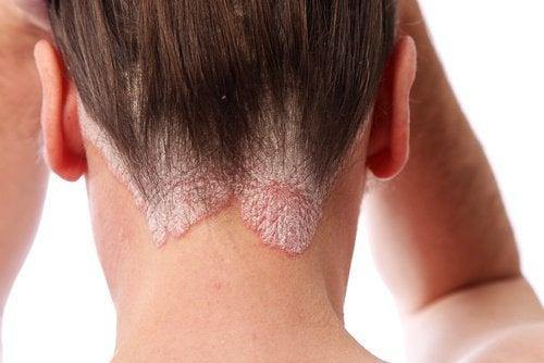 Psoriazisul provoacă leziuni și mâncărimi ale pielii