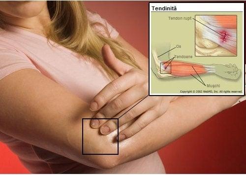 Tendinita poate fi una dintre cauzele durerilor articulare