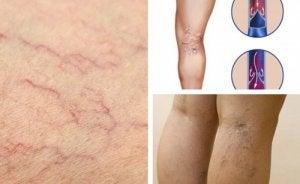 este varicele o boală vasculară periferică cum scap de sindromul picioarelor neliniștite