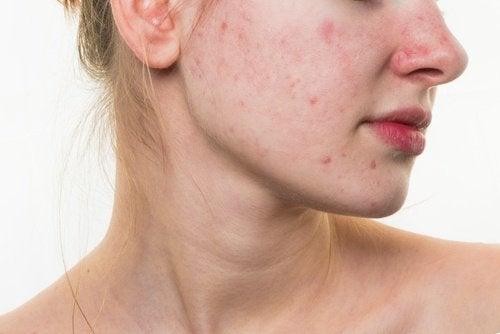 Fața ta va fi influențată de dieta pe care o urmezi