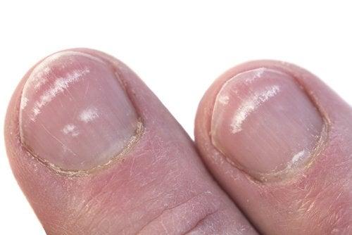 Petele albe de pe unghii sunt foarte inestetice