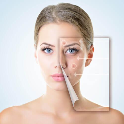 Probleme digestive manifestate prin imperfecțiuni ale pielii
