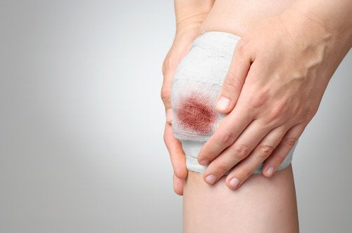 Poți vindeca rănile cu diverse remedii naturiste
