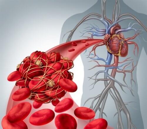 Tromboza poate avea mai multe cauze