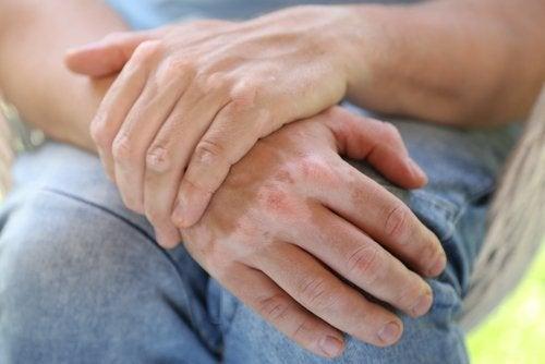 Vitiligo este o boală autoimună