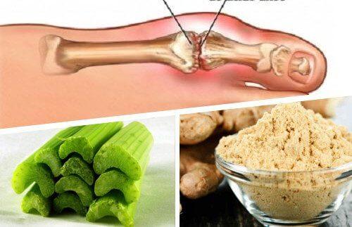 Diverse ingrediente naturale te ajută să scapi de cristalele de acid uric