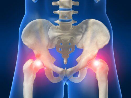 Durerea de șold poate fi cauzată de osteoartrită