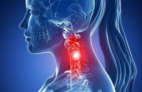 Simptome și tratamente pentru spondiloza cervicală