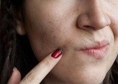 Anumite alimente sunt foarte benefice pentru pielea ta
