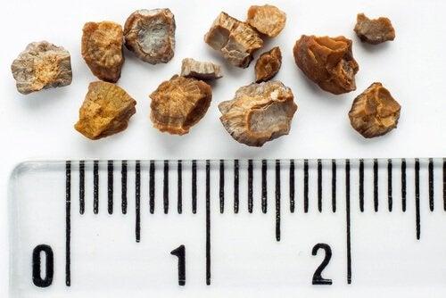 Persoanele cu pietre la rinichi nu trebuie să consume ceai de păpădie