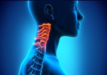 remediu eficient pentru osteochondroza cervicală