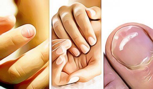 5 semne că unghiile indică o problemă de sănătate