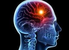 Poți lua anumite măsuri pentru a preveni un accident vascular cerebral