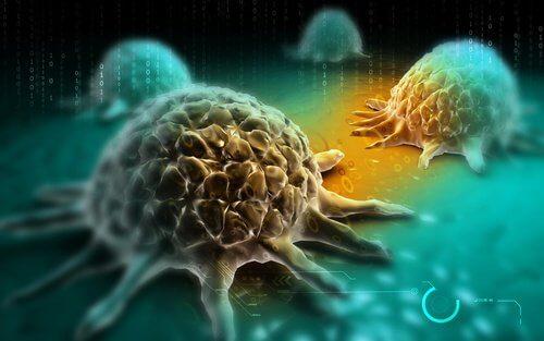 Cancerul pulmonar non-microcelular este foarte agresiv