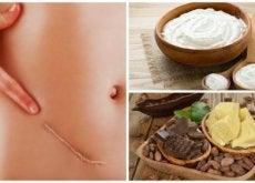 Cicatricile pot fi diminuate folosind remedii naturale