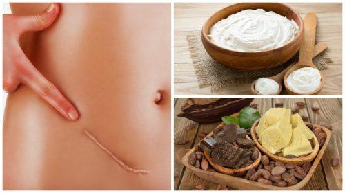 7 remedii naturale care diminuează cicatricile