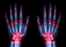 Osteoartrita trebuie diagnosticată timpuriu