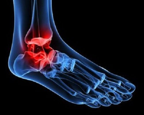 Osteoartrita gleznei poate fi cauzată de mai mulți factori