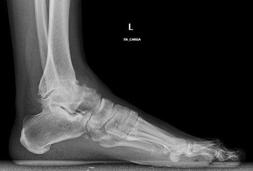 Osteoartrita gleznei trebuie tratată în mod adecvat