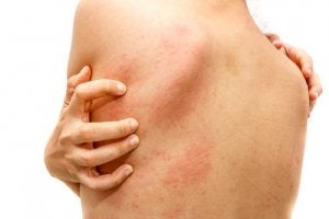 Urticaria - tipuri, cauze posibile și tratament