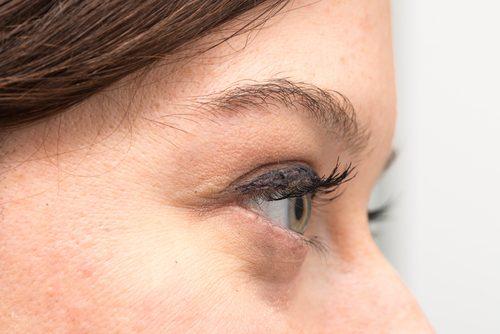 Cauze și tratamente pentru pungile de sub ochi