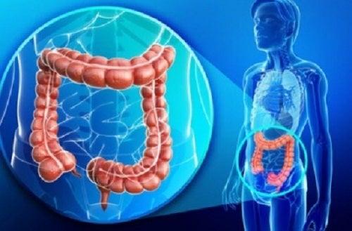 Multe persoane suferă de probleme la colon